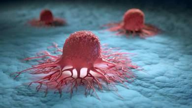Photo of روشی برای جلوگیری از گسترش تومور سرطانی