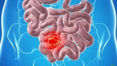 Photo of کشف ژنی که سرطان روده را کنترل میکند