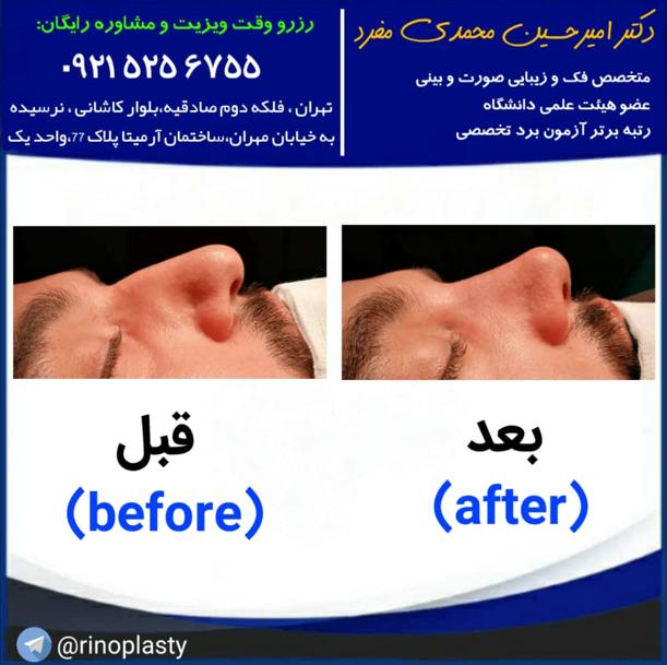 آیا جراحی بینی گوشتی باز می گردد؟